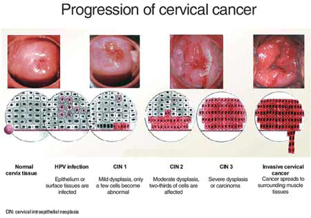 vaginal cancer pictures cancer images gallery related