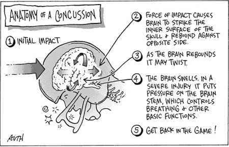 Danger of Concussion