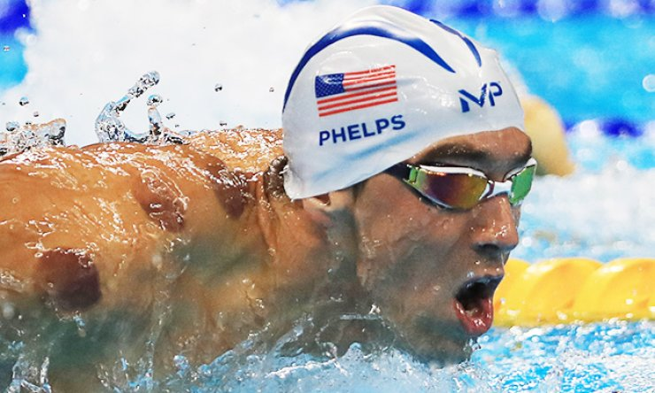 Purple marks from cupping are conspicuous on the shoulder of U.S. swimmer Michael Phelps during a swimming competition at the 2016 Rio Games, Monday (KST).  /AP-Yonhap