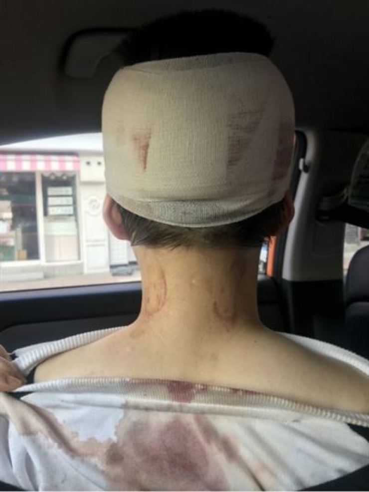 The photo of a woman with an injured head after she was assaulted by men at a pub near Isu Station, Seoul, posted online by her younger sister, Wednesday.