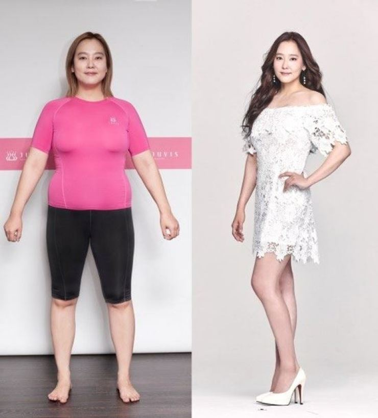 Before and after: K-pop singer/musical actress Dana flaunts her slim body after shedding 20 kilograms. Courtesy of Juvis