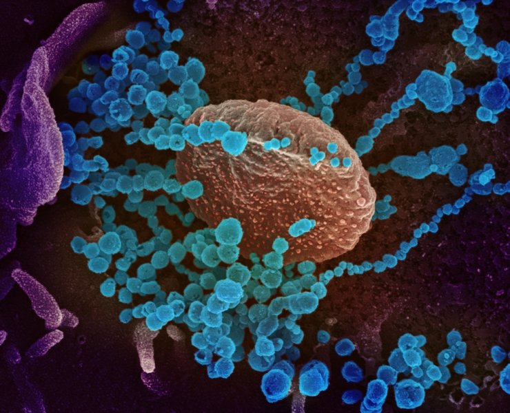 An undated handout picture made available by the U.S. National Institute of Health shows a scanning electron microscope image of SARS-CoV-2 (round blue objects) emerging from the surface of cells cultured in the lab (issued Feb. 27). SARS-CoV-2, also known as 2019-nCoV, is the virus that causes COVID-19. The virus shown was isolated from a patient in the United States. EPA