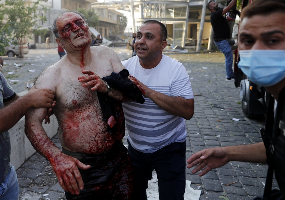 An injured man walks at the explosion scene that hit the seaport, in Beirut Lebanon, Tuesday, Aug. 4, 2020. Massive explosions rocked downtown Beirut on Tuesday, flattening much of the port, damaging buildings and blowing out windows and doors as a giant mushroom cloud rose above the capital. Witnesses saw many people injured by flying glass and debris. (AP Photo/Hussein Malla)