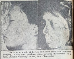 [Korea Encounters] Looking down high noses at 'quack plastic surgeons' in 1971