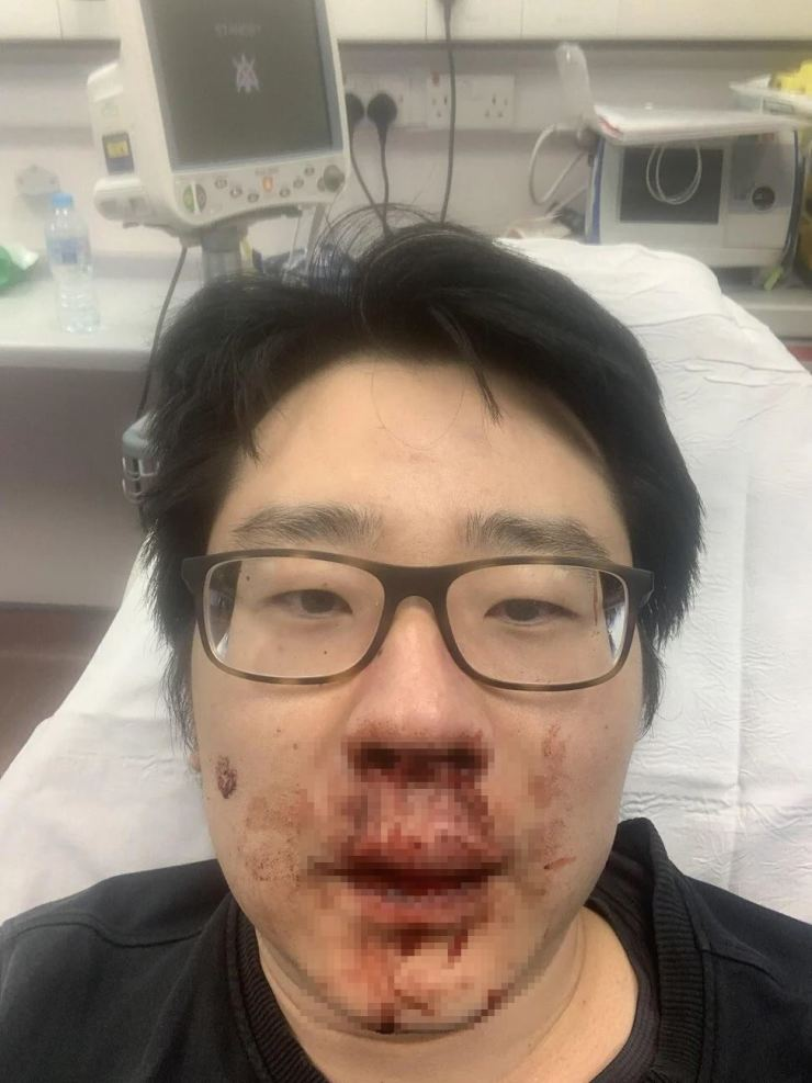 Lecturer Peng Wang suffered a bloody nose and bruises to his face after he was attacked in the British city of Southampton last week. Handout