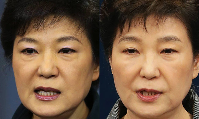 President Park Geun-hye turns her head after finishing the Pledge of Allegiance at the 21st Cabinet meeting at the presidential office on May 13, 2014.  Doctors speculate that the bruise on the right side of her mouth is a side effect of facial filler injections. Before the Cabinet meeting, Park had no official schedule for three days. / Korea Times file