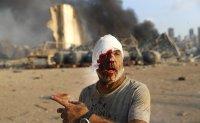 Beirut blast: Dozens dead and thousands injured [PHOTOS]