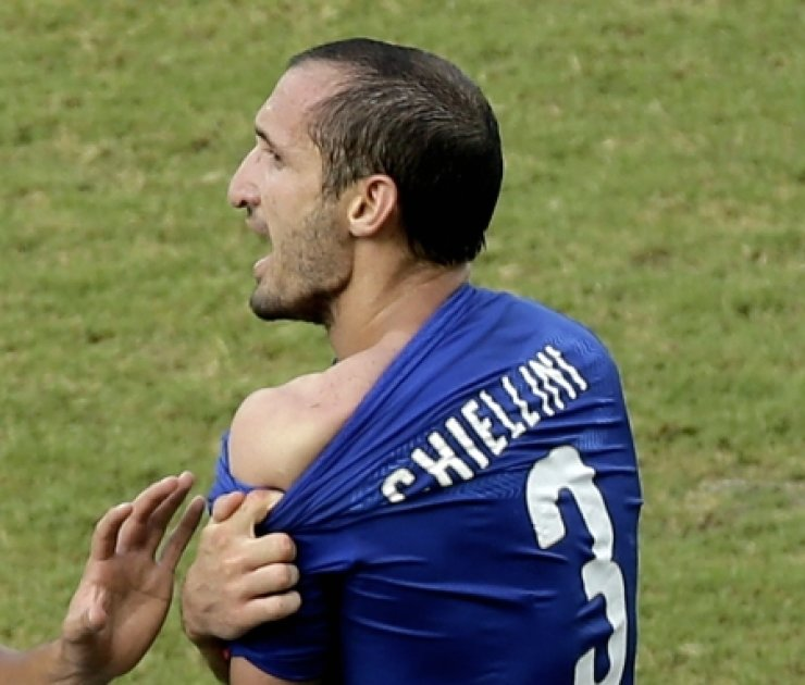 Italy's Giorgio Chiellini displays his shoulder showing apparent teeth marks after colliding with the mouth of Uruguay's Luis Suarez during their Group D World Cup match in Natal, Brazil, Tuesday. /AP-Yonhap