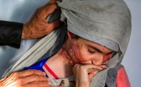 Disfigured by acid, the face of violence against Yemen's women