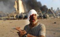 Terror, death, devastation in Lebanon explosion [PHOTOS]