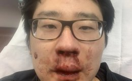 'Chinese virus, get out!': Chinese lecturer assaulted in UK amid fears of anti-Asian racism