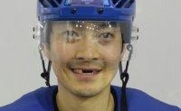 Korean ice hockey player loses three teeth in match against Canada