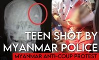 Myanmar teen shot in head during police crackdown on protests