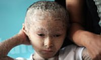 Pan Xianhang suffers from itchy scale skin disease Ichthyosis