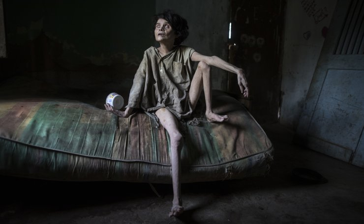 In this Nov. 28, 2019 photo published on Dec. 27, Zaida Bravo, who suffers Parkinson's disease and is malnourished, waits for dinner on her dirty mattress in her one room living quarters in Maracaibo, Venezuela. The 48-year-old's sister Ana Bravo brings her food when she can, but for the last four years the older sister has had trouble affording even rice or cornmeal. 'We can't find her medicine or even know how to help her, so we're letting what happens happen,' Ana Bravo, 57, said. 'Sometimes, I'm afraid to go inside and find her dead.' AP