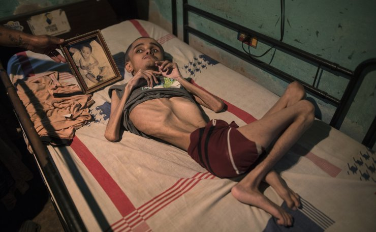 Miguel Blanco, who was born with Hydrocephalus, lays in a bed where his brother places a photograph of him when he was a toddler in Maracaibo, Venezuela, Nov. 27, 2019. Blanco, 28, lives with his unemployed mother who can only afford to feed him once a day. AP