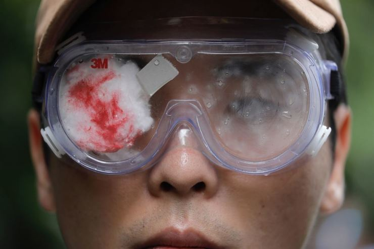 A pro-democracy protester with his eye covered in red-eyepatch, symbolizing a women reported to have had an eye ruptured by a beanbag round fired by police during clashes, participates in a march organized by teachers in Hong Kong Saturday, Aug. 17, 2019. Members of China's paramilitary People's Armed Police marched and practiced crowd control tactics at a sports complex in Shenzhen across from Hong Kong in what some interpreted as a threat against pro-democracy protesters in the semi-autonomous territory. (AP Photo/Vincent Yu)
