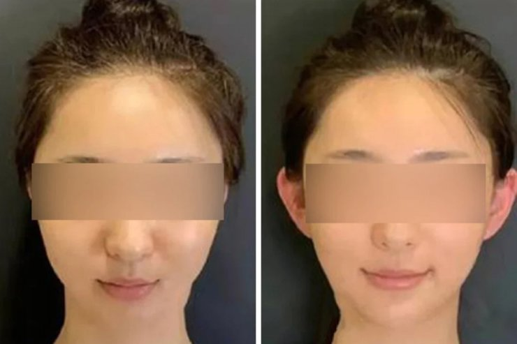 'Elf ears' are a new fad among young Chinese who hope it will make their faces appear slimmer. South China Morning Post