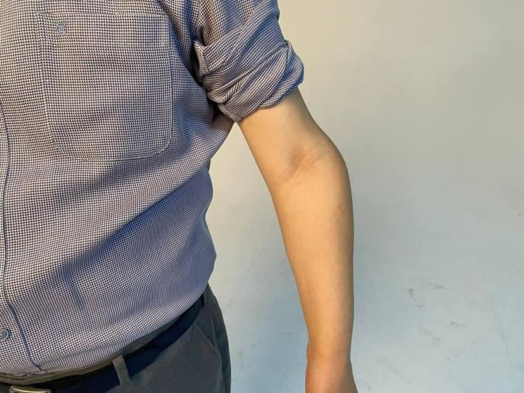 This photo released on July 17 by Gyeonggi Province Governor Lee Jae-myung of the liberal ruling Democratic Party of Korea, who is running in the presidential election, shows his disfigured arm. He released the photo because some people have criticized him for not completing the country's mandatory military service. Yonhap