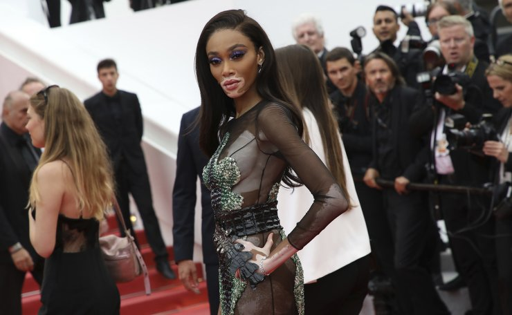 Model Winnie Harlow poses for photographers upon arrival at the premiere of the film 'Oh Mercy' at the 72nd international film festival, Cannes, southern France, Wednesday, May 22, 2019. AP
