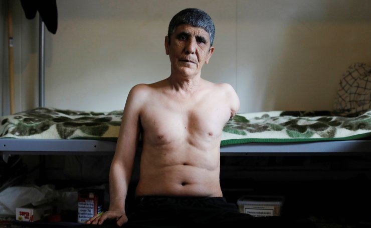Karim Azizi, 55, a Kurdish Iranian, poses for a photograph in his bedroom as he shows his injuries, at Kaershovedgaard, a former prison and now a departure centre for rejected asylum seekers in Jutland, Denmark, March 26, 2019. Azizi claims to have lost his arm when a bomb exploded near him. Reuters