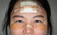 Korean nurses' bandages become badges of honor