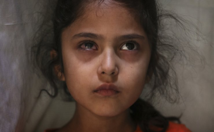 Six-year-old Muneefa Nazir, a Kashmiri girl whose right eye was hit by a marble ball shot allegedly by Indian Paramilitary soldiers on Aug. 12, stands outside her home in Srinagar, Indian controlled Kashmir, Sept. 17, 2019. AP