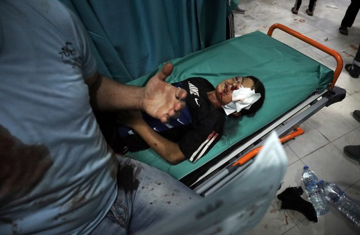 A wounded boy lies on a stretcher in a hospital following an explosion in the town of Beit Lahiya, northern Gaza Strip, on Monday, May 10, 2021, during a conflict between Hamas and Israel. AP
