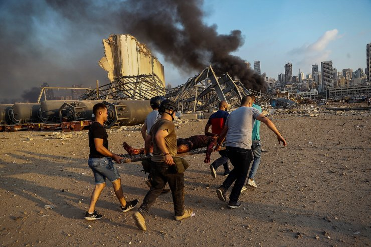 Civilians carry a victim at the explosion scene that hit the seaport in Beirut, Lebanon, Aug. 4, 2020. The image was part of a series of photographs by The Associated Press that was a finalist for the 2021 Pulitzer Prize for breaking news photography. AP