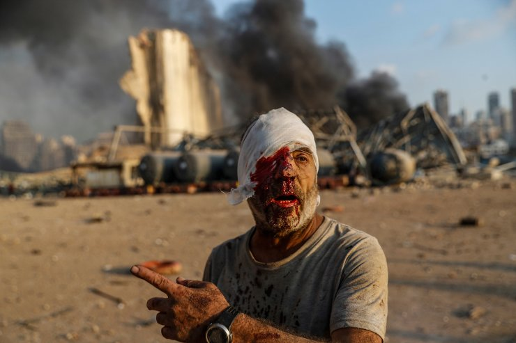 An injured man walks at the explosion scene that hit the seaport, in Beirut Lebanon, Aug. 4, 2020. The image was part of a series of photographs by The Associated Press that was a finalist for the 2021 Pulitzer Prize for breaking news photography. AP