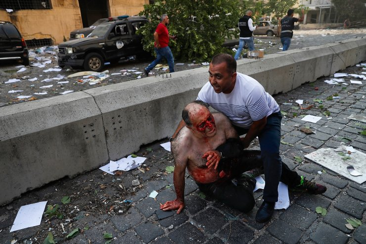 A Lebanese man helps an injured man who was wounded by an explosion that hit the seaport of Beirut, Lebanon, Aug. 4, 2020. The image was part of a series of photographs by The Associated Press that was a finalist for the 2021 Pulitzer Prize for breaking news photography. AP