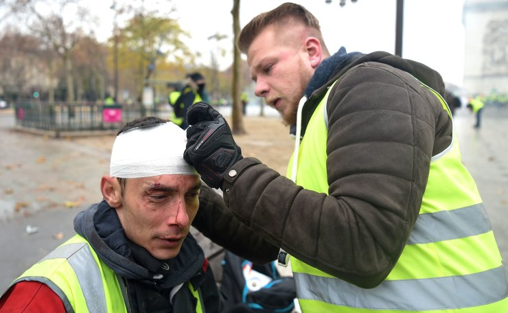 A demonstrator treats a wounded man during a protest of Yellow vests (Gilets jaunes) against rising oil prices and living costs on the Champs Elysees in Paris, on December 1, 2018. AFP