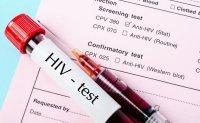 HIV testing put on backburner amid pandemic