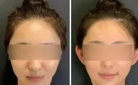 China's 'elf ear' cosmetic surgery increasingly sought by young people seeking a thinner, slimmer face